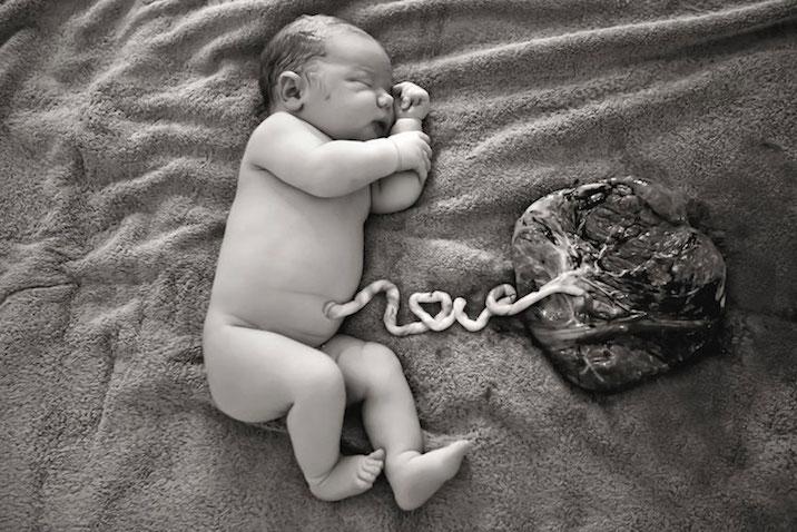 placenta bebe