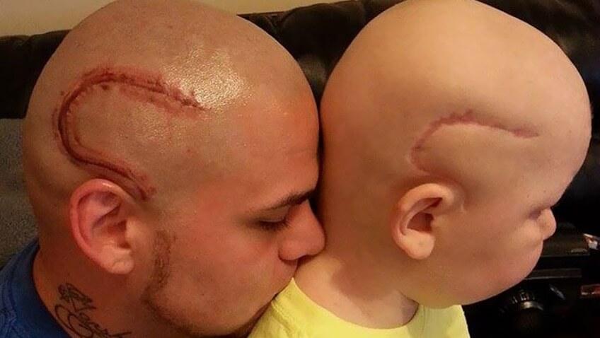 padre se tatua la cabeza por su hijo (1)