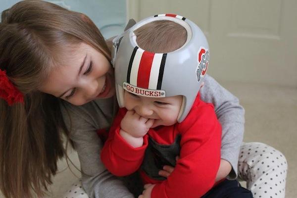 casco plagiocefalia bebe rugby