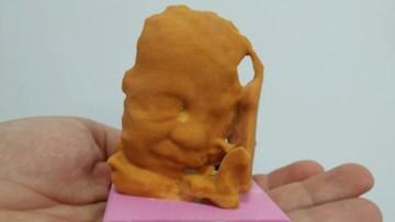 Imprimir ecografías de tu bebé en 3D