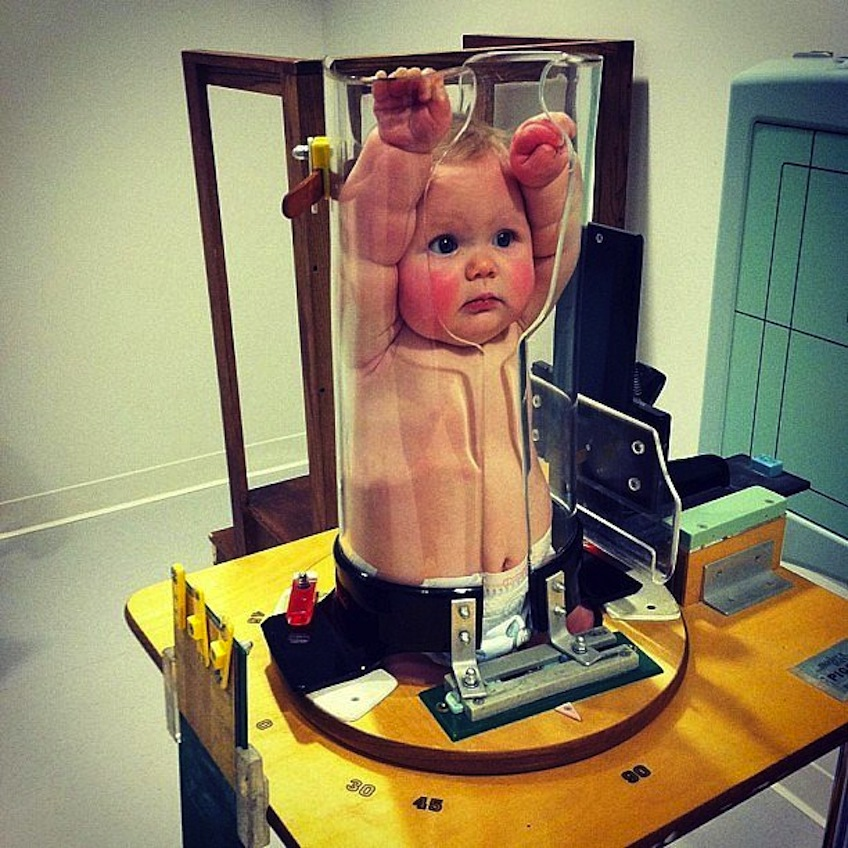 bebe rayos x
