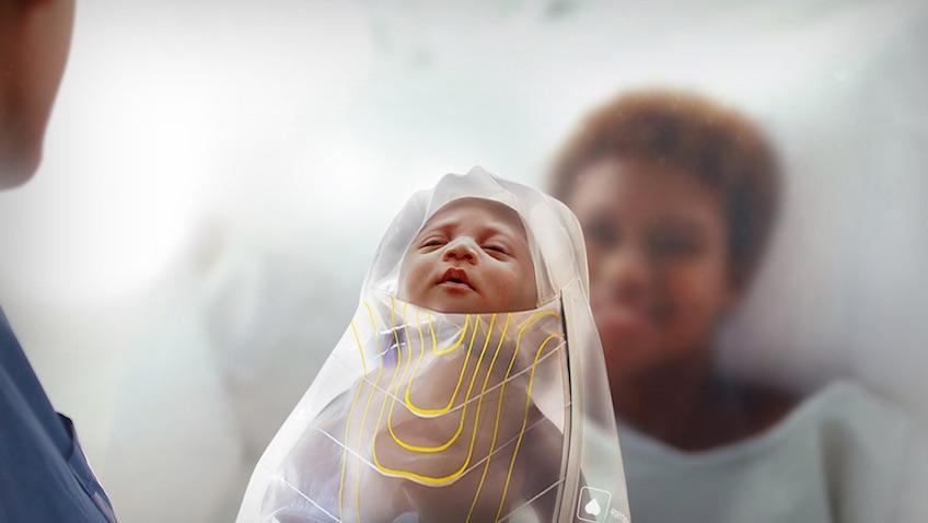 salvar vidas de bebés recién nacidos con el kit kanga